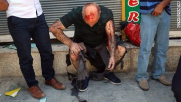 150720122822-turkey-suruc-explosion-wounded-large-169